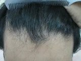 Scarless Surgery -FUE Pakistan-Hair