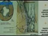 Hemoroizi - Evolutie Si Manifestare - Proctoline